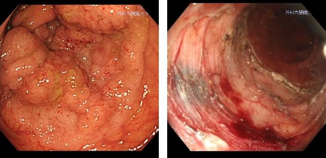 大腸胃内視鏡的粘膜下層剥離術